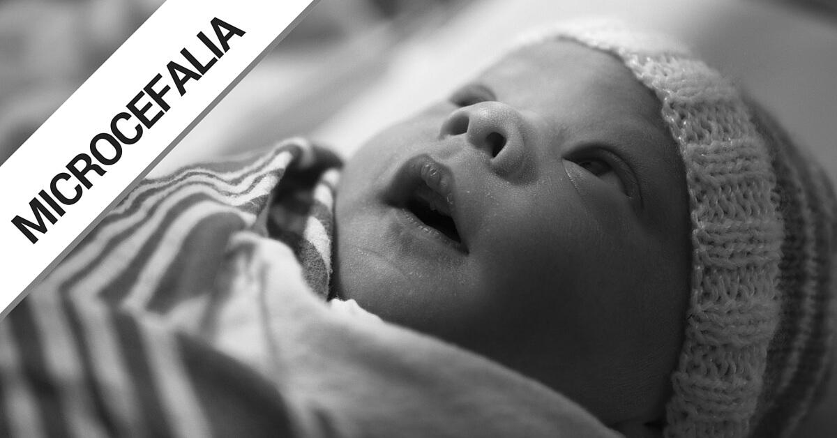 O que é a Microcefalia? E o que o profissional de Enfermagem precisa entender!